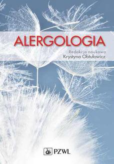 Alergologia - ebook/epub